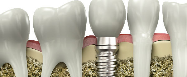 Process of Teeth Correction