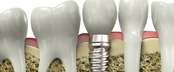 Process of Teeth Correction - Jacqueline S. Brown, DDS
