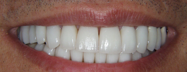 dental-crowns-mouth-after