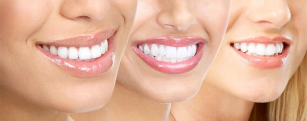 Cosmetic Dentistry - Jacqueline S. Brown, DDS, Honolulu, HI