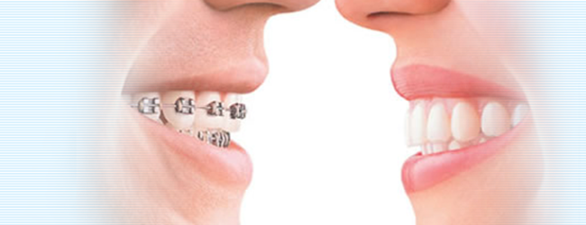Invisalign Invisible Braces - Jacqueline S. Brown, DDS, HI