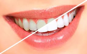 Teeth Whitening - Jacqueline S. Brown, DDS, Honolulu, Hawaii
